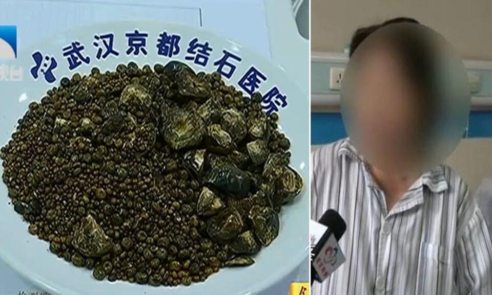 """""""Не сакала да пие вода, ниту да појадува"""": Докторите се шокирале откако и го извадиле ова од жолчката (ФОТО)"""