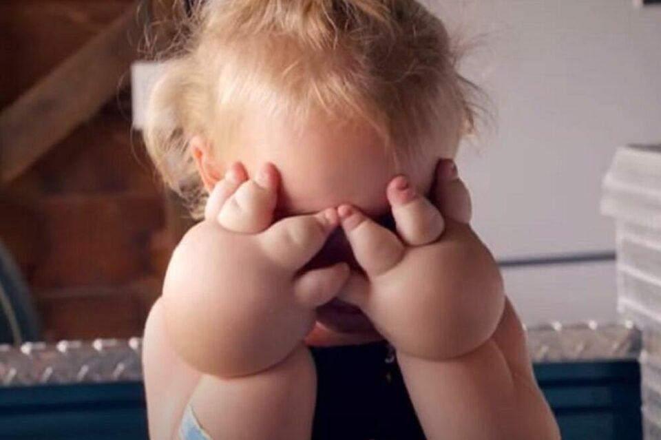 Девојче (2) има болест која постојано се влошува: Најлош е случајот со нејзините рачиња (ФОТО)